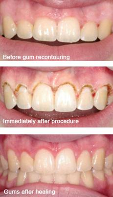 Dental Services In Los Angeles Everest Dental Care